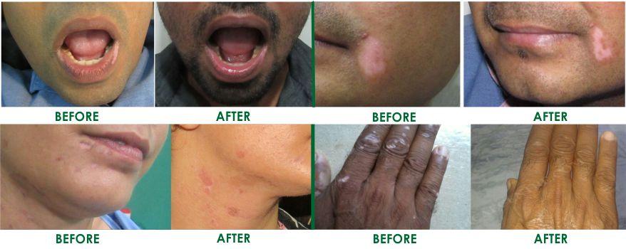 Vitiligo Treatments In Delhi Vitiligo Surgery In Delhi India And Best Cost With Best Results
